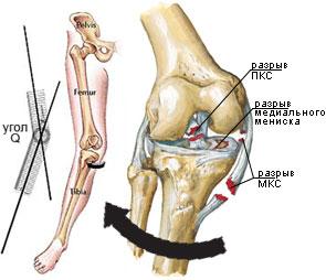 deteriorarea parțială a ligamentului genunchiului