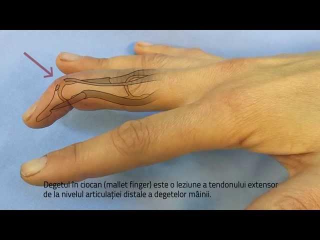 Problemele articulației pumnului   Ottobock RO