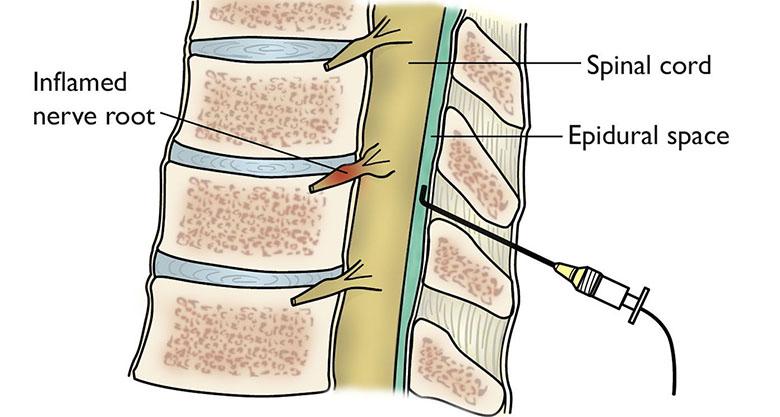 edem intervertebral