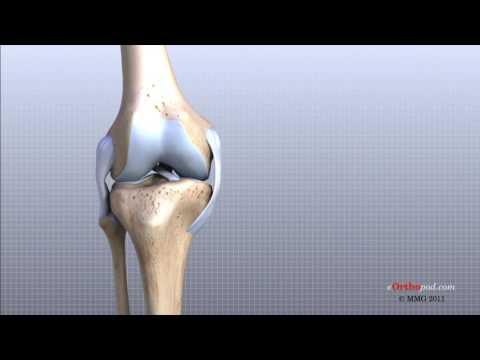 tratamentul uleiului articulațiilor genunchiului semne și tratament articular