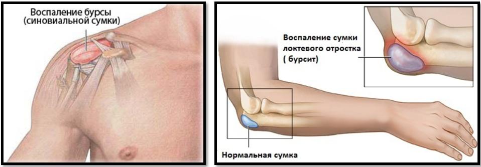 durere în articulația șoldului piciorului. care u