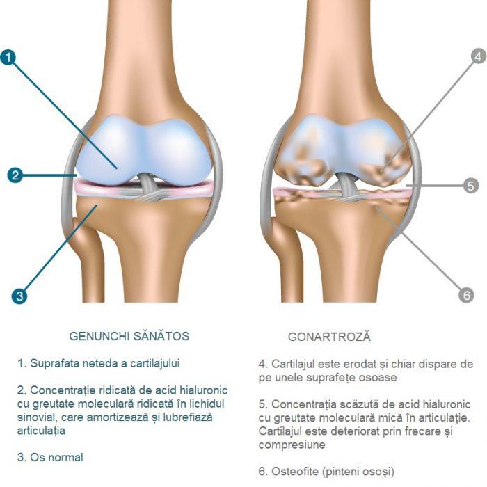 tratamentul cu acid hialuronic pentru artroză calmante injectabile pentru dureri articulare