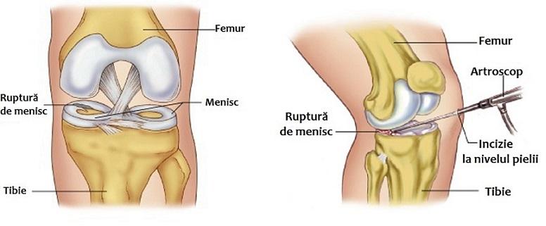 complicații ale genunchiului cu leziuni de menisc gel glucosamină condroitină universală
