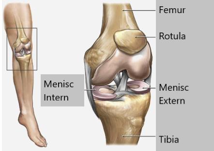 complicații ale genunchiului cu leziuni de menisc Dureri dureroase la genunchi