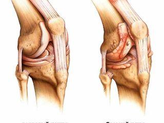Produse cu turmalină pentru dureri articulații, spate, genunchi