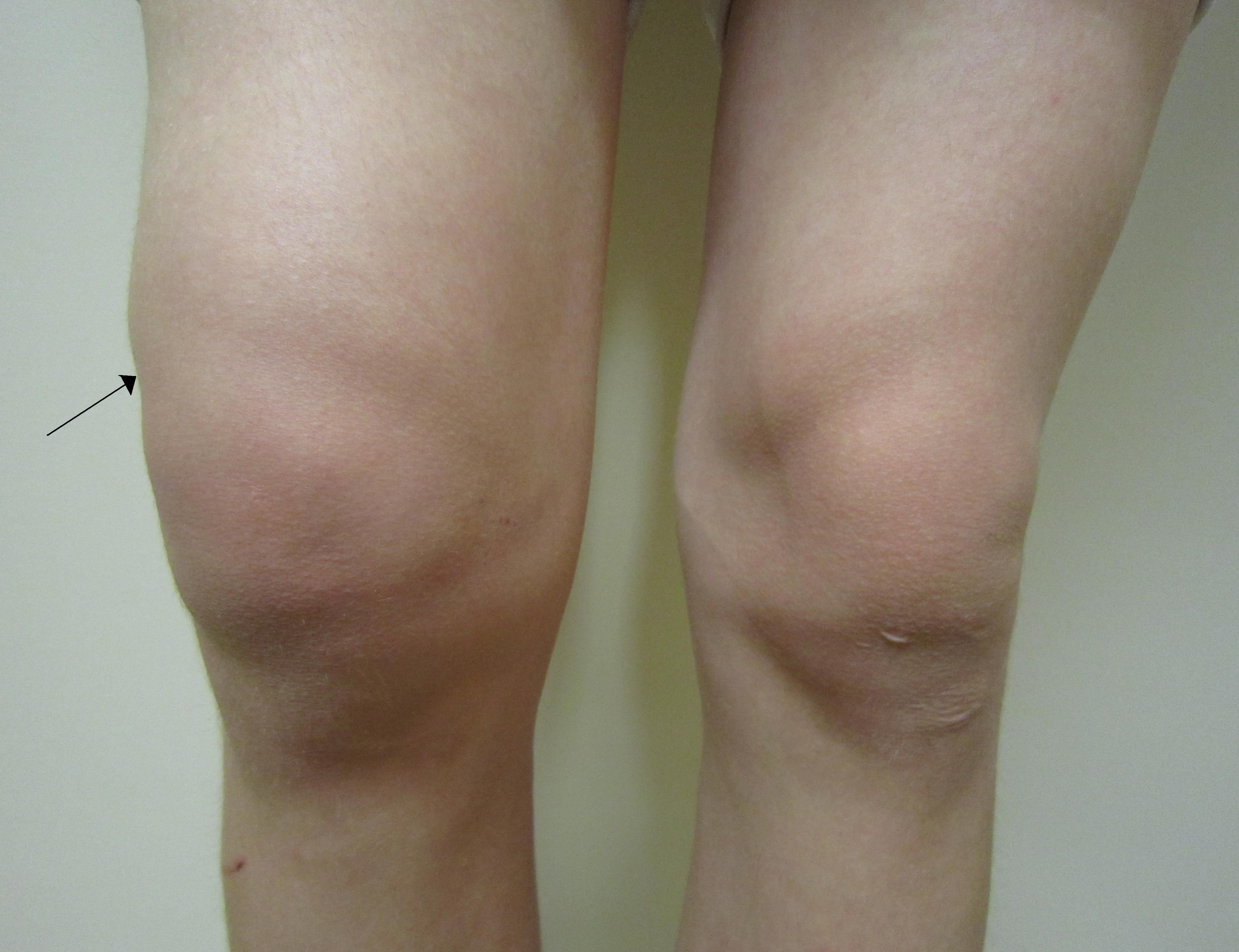 Genunchi supliment de reparații - Face clic pe o articulație cu durere