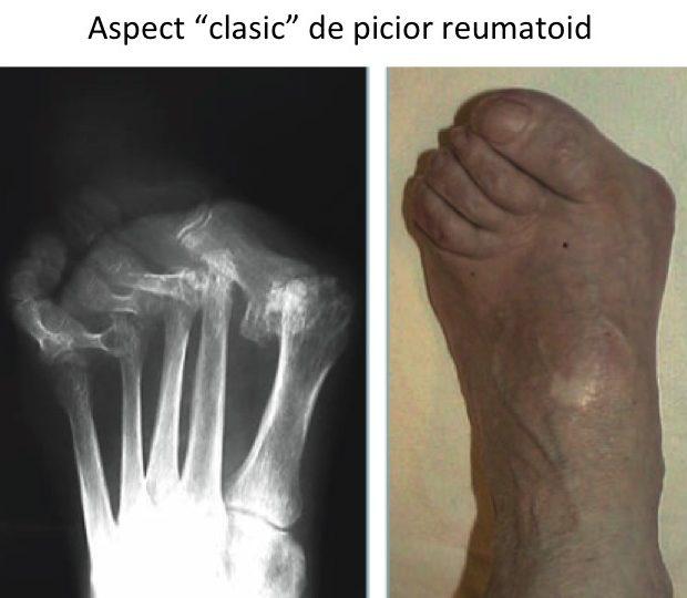 artroza artrita articulațiilor piciorului unguent împotriva umflarea articulației