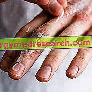 durerea articulară și musculară provoacă tratament dureri articulare amorțeala mâinii stângi gâscă
