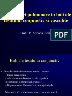 boala țesutului conjunctiv ce este