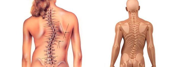 tratamentul eficient al articulațiilor și al coloanei vertebrale