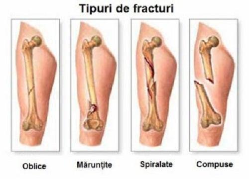 medicamente pentru construcția cartilajelor articulații și tuse uscată