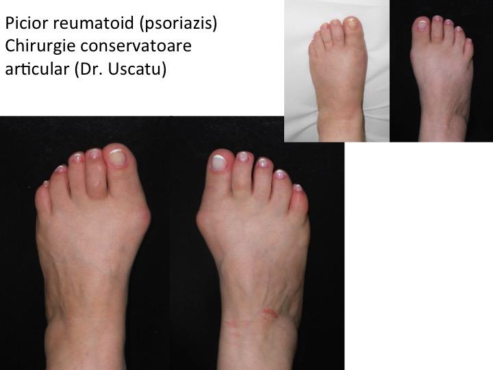 tratamentul artrozei reumatoide a piciorului semne de artroză în articulația genunchiului
