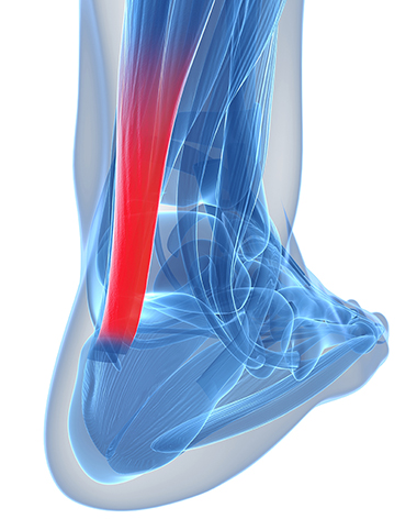 deteriorarea tendonului cauzată de deplasarea osoasă în articulație hemlock pentru dureri articulare