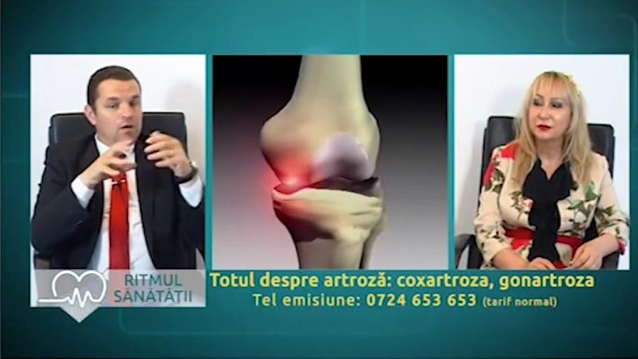 tratament cu artroza clubului de corali varza de cartofi pentru dureri articulare