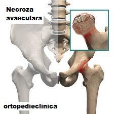 articulația doare mult timp după o accidentare dacă articulațiile încheietura mâinii doare
