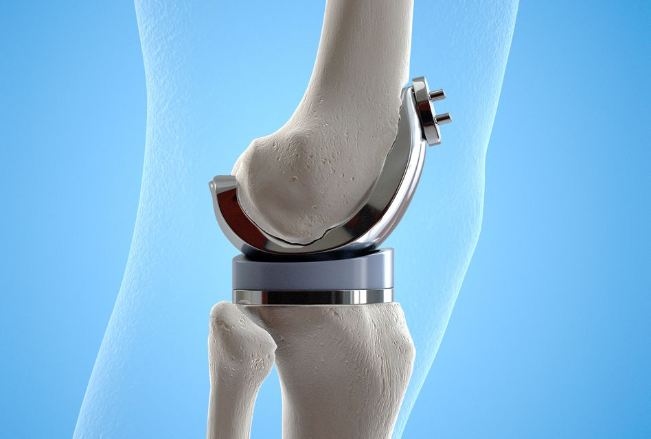 Dureri de genunchi după înlocuirea articulațiilor