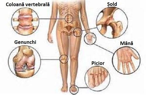 dureri dureroase la nivelul articulațiilor genunchiului și cotului