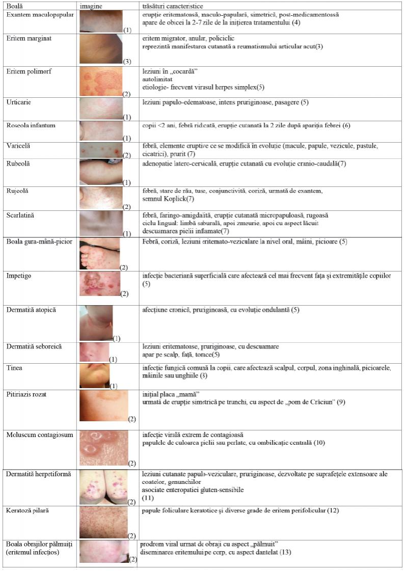 Dermatomiozita Juvenilă