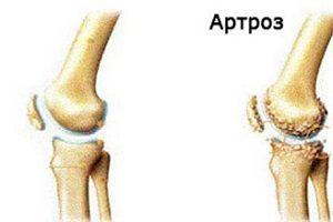 cum să opriți artroza articulară într-un stadiu incipient