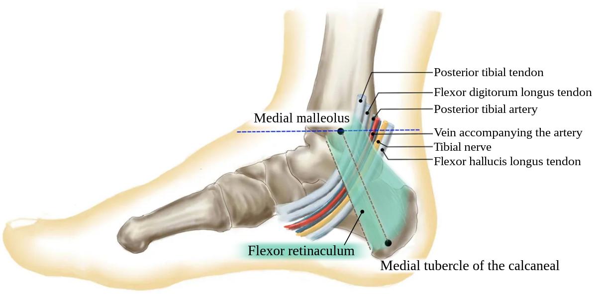 Articulațiile tarsal-metatarsiene doare, METATARSALGIA - CAUZE, SIMPTOME, TRATAMENT