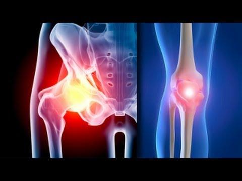 Artroza de gradul doi a articulațiilor șoldului