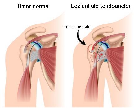 apăsări și dureri în articulația umărului