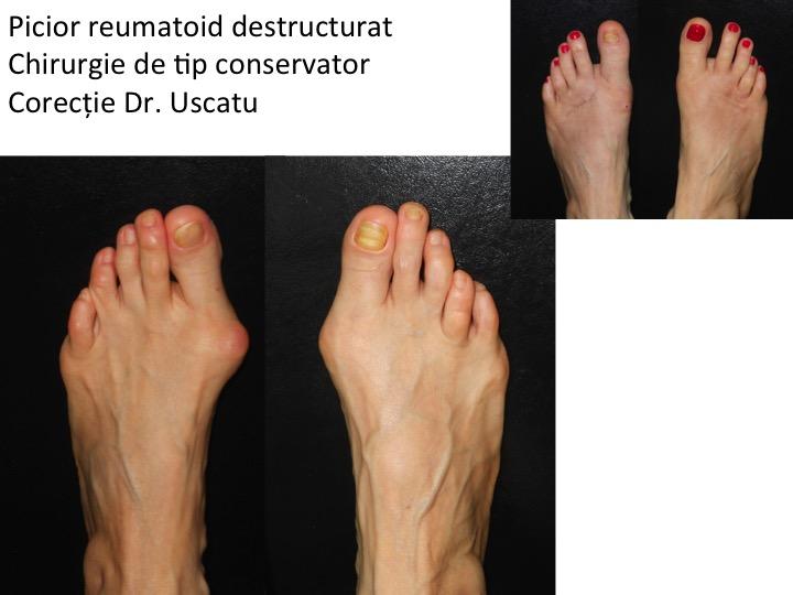 degetele de la picioare artrite reumatoide articulațiile degetelor și degetelor de la picioare