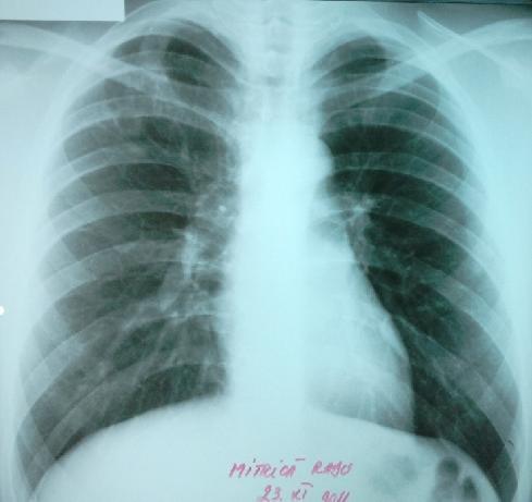 Boala care poate afecta toate organele