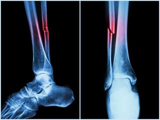 cât de mult doare fractura articulară