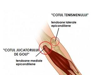 tendonul dureros al articulației cotului