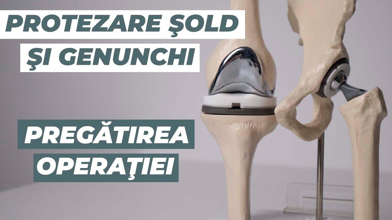 ortoped cu dureri de șold tratament cu exerciții de artroză