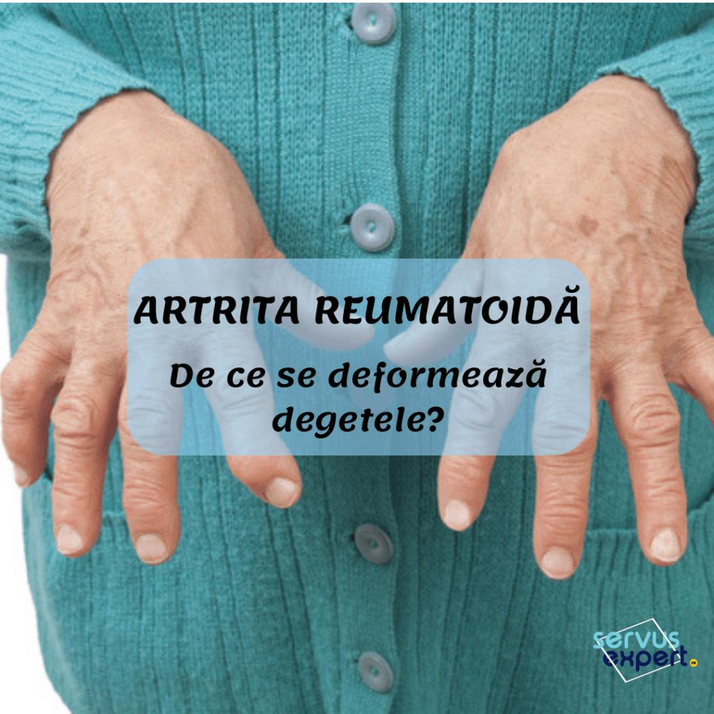 artrita pe degete consecințe