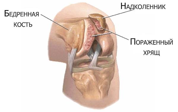 deteriorarea ligamentelor care leagă articulațiile numite