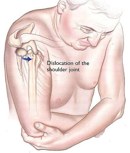 tratamentul osteoporozei articulației umărului cum se poate vindeca artroza în articulația cotului