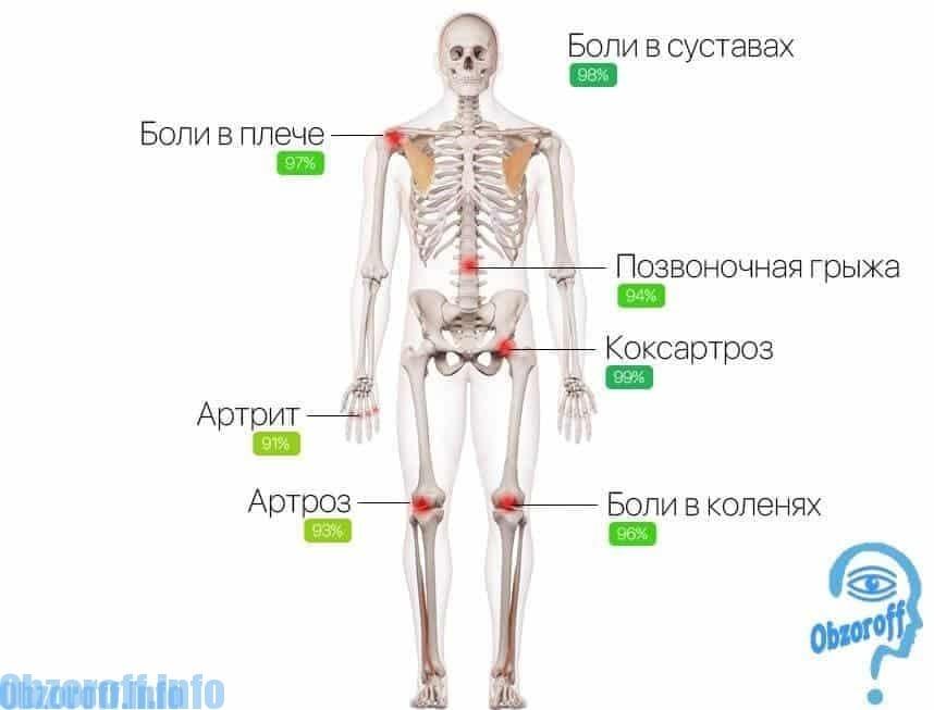 cauzele durerii la nivelul articulațiilor coatelor și genunchilor tratamentul articulațiilor nu este scump