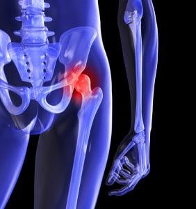 fermatron de tratament articular articulațiile suferă de urologie