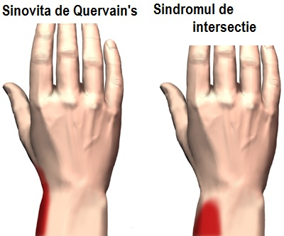 durere degetul mare la încheietură
