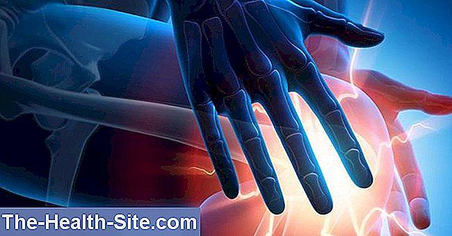 tratament cu gel de artroză durere în vena articulației cotului