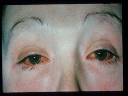 Sindromul Reiter - Reiter tratament articular