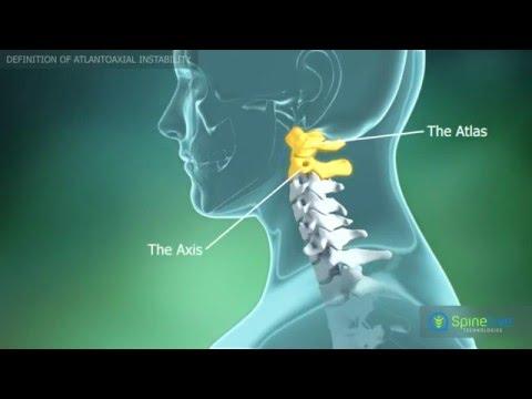 medicamentele pentru dureri articulare sunt bune remedii pentru durerea în mușchi și articulații