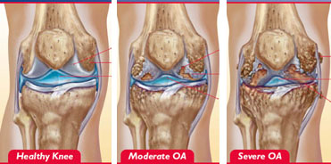 Boala artrozică: factori şi tratament