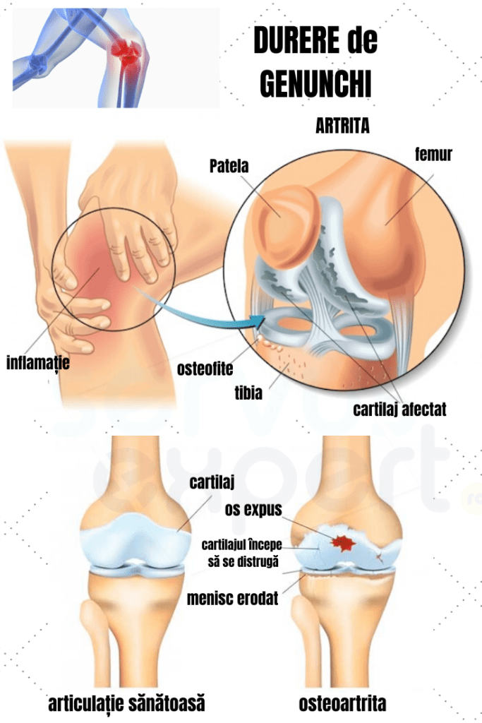 dureri de genunchi dimineața
