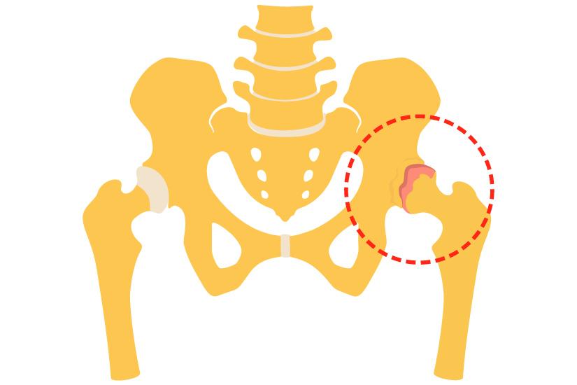 artroza deformantă a articulației șoldului 1 dureri articulare cu genunchiul cotului