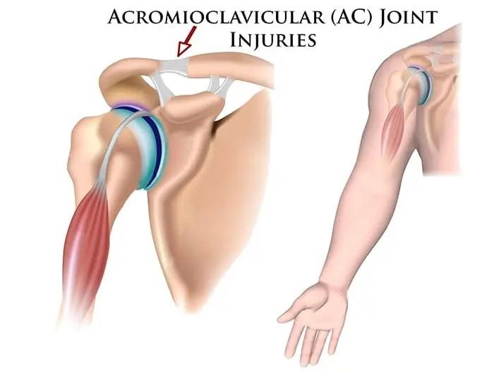articulația umflată pe braț după rănire