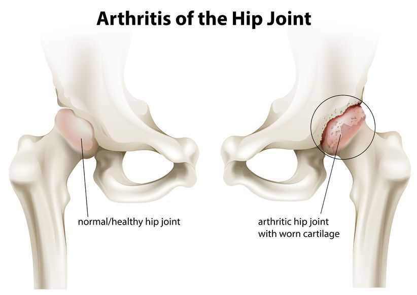 artroza deformantă a coxartrozei tratamentului articulației șoldului artrita degetelor medicinale