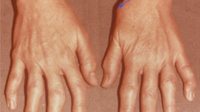 tratamentul reumatolog al artrozei