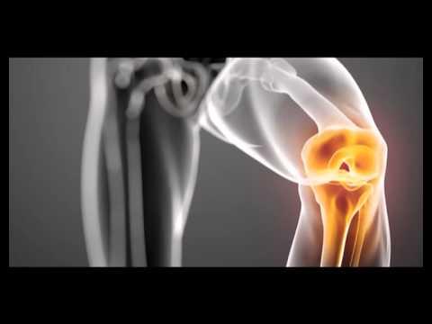 tratament cu artroza clubului de corali medicament pentru întărirea ligamentelor genunchiului