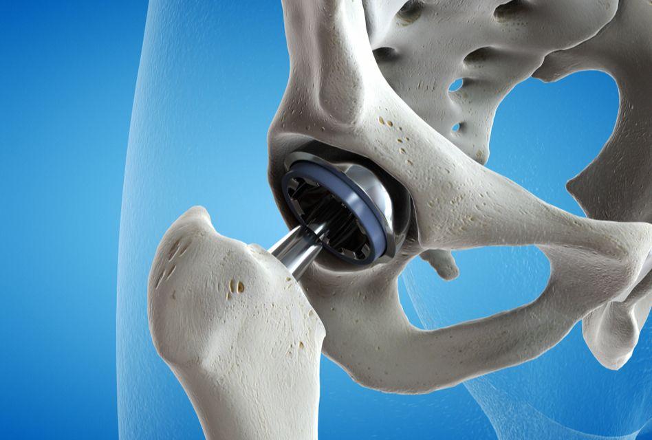 durere la nivelul piciorului după înlocuirea șoldului