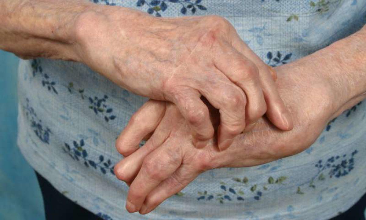 Diferența de artroză față de artrita degetelor