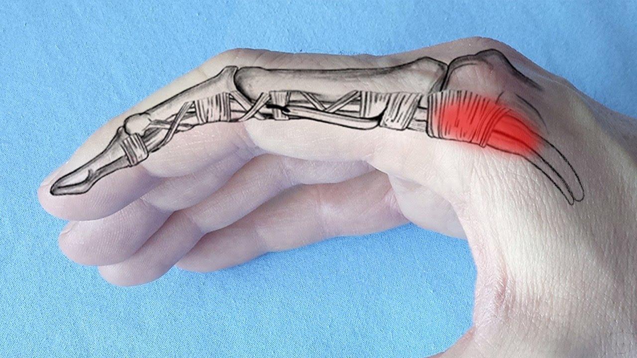 articulațiile artritei ameliorează durerea boli ale articulațiilor genunchilor picioarelor provoacă